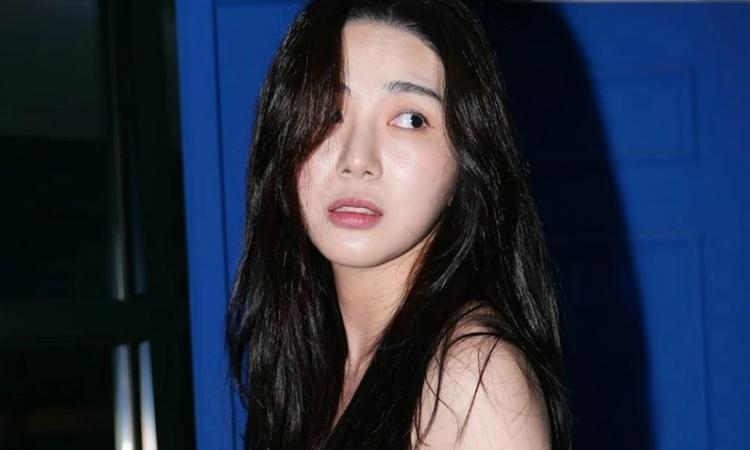 Médico habla sobre el nuevo intento de suicidio de Kwon Mina