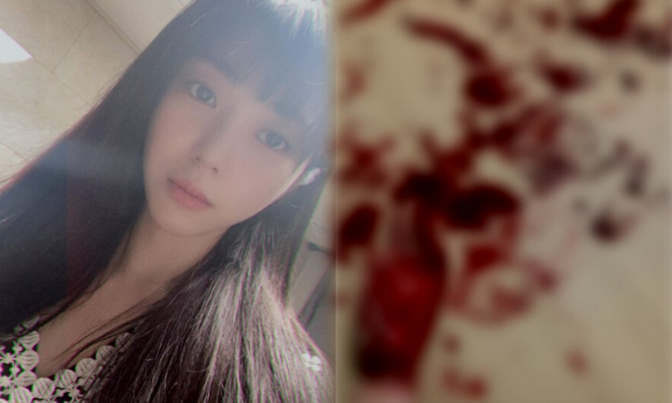 Mina ex AOA comparte una sangrienta foto de autolesión en su cuenta de Instagram
